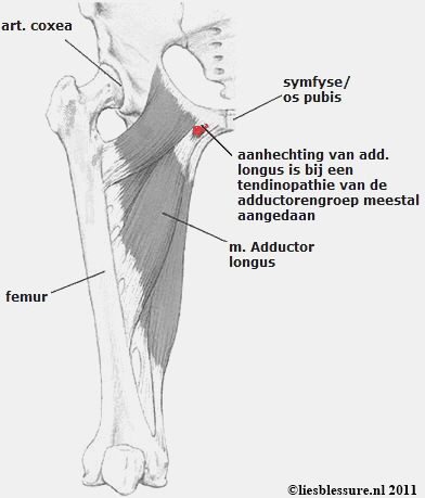 liesblessure - peesblessures